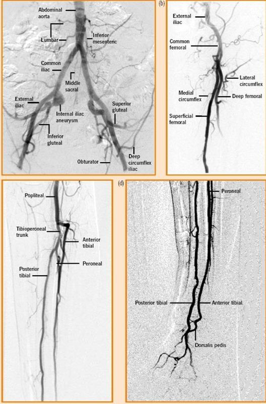 Lower leg arterial anatomy